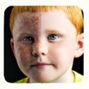 Pimple Remover HD